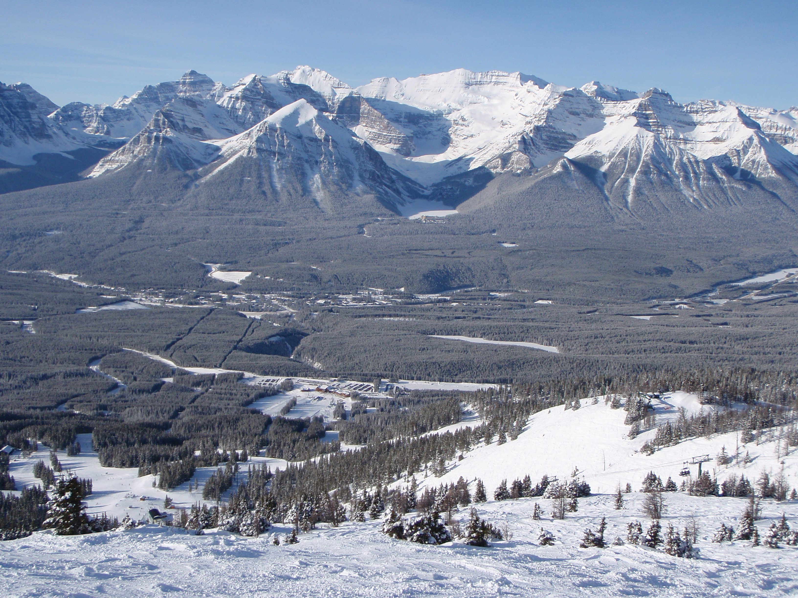 The Sun does shine in LL, Lake Louise